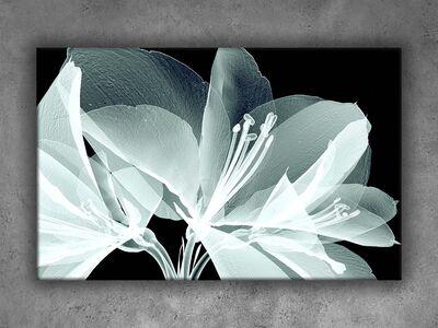X-Ray Fotoğraflar